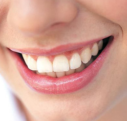 Remedies to prevent tooth discoloration