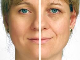 Homemade Masks for Wrinkle Remover
