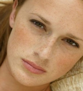 Freckles-2