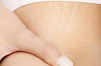Get Rid of Stretch Marks after Pregnancy,