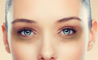 Dark Circles Treatment