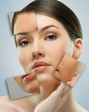 Whitening Cream Side Effects
