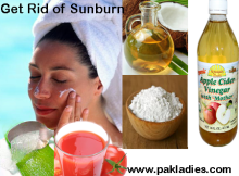 treatment for sunburns on face
