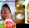 treatment for sunburns on face