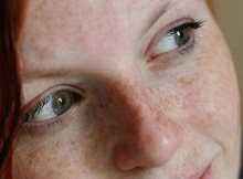 Facial Treatment for Freckles