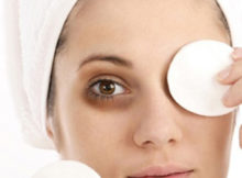 Eye Dark Circles Removal
