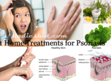 Home Treatments for Psoriasis