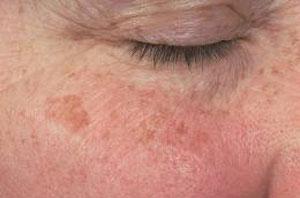 Facial skin blemish share