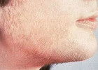 Unwanted Facial Hair Removal