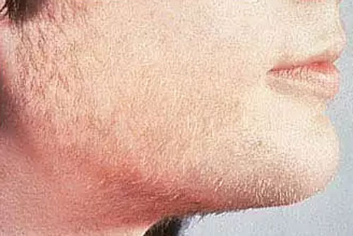 Unwanted Facial Hair Removal