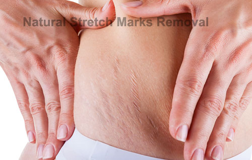 natural-stretch-marks-remov