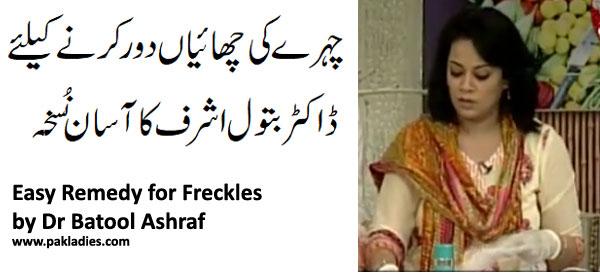 Easy Remedy for Freckles by Dr Batool Ashraf