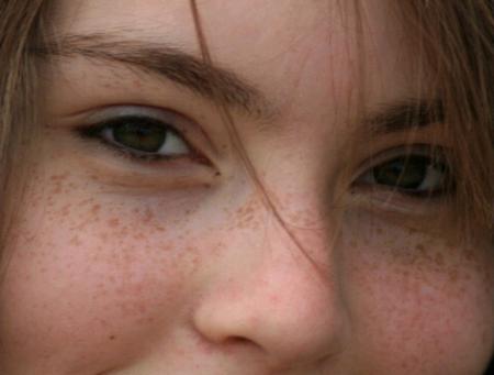 freckles treatment