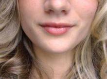 get rid of facial hair
