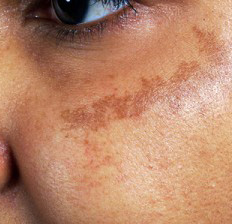 Brown Spots on Face and Body