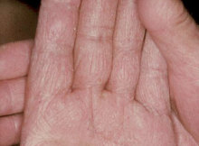 fungal infection on hands treatment