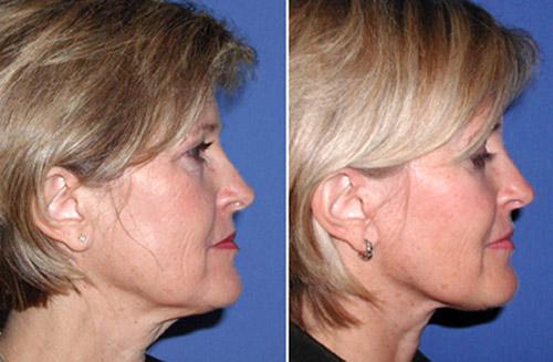 face lift facial