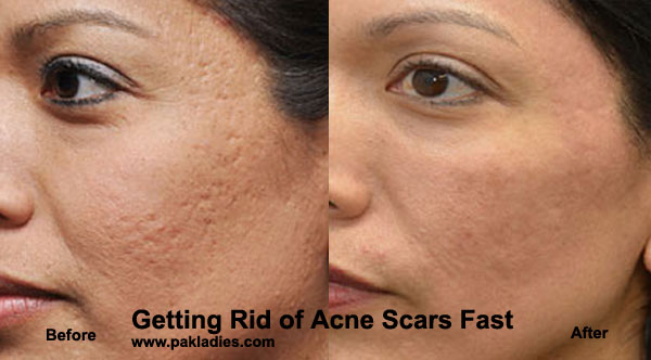 Getting Rid of Acne Scars Fast