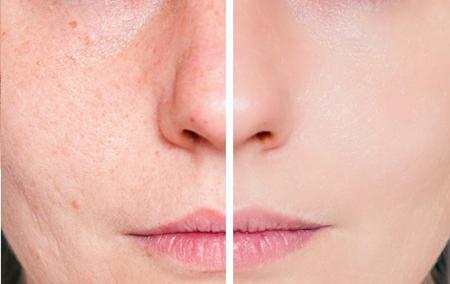acne scars remedies