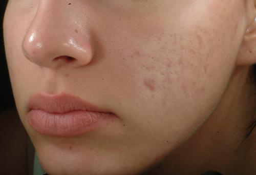 laser treatment face