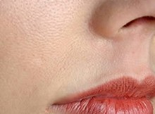 Skin Treatment for Large Pores