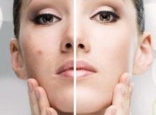 Acne Skin Care Routine