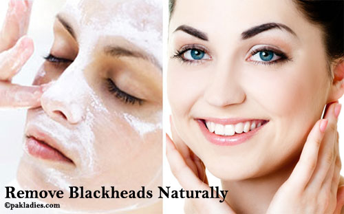 Remove Blackheads Naturally