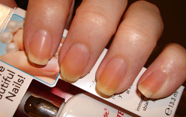 Prevent Yellow Nails