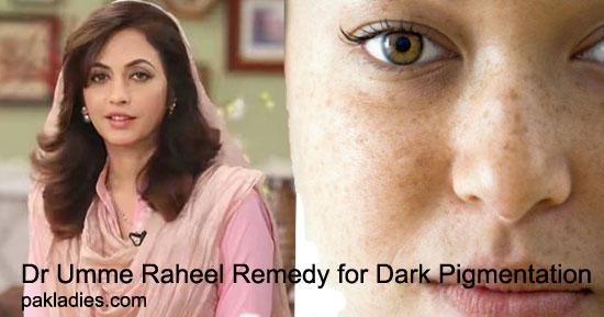 Dr Umme Raheel Remedy for Dark Pigmentation