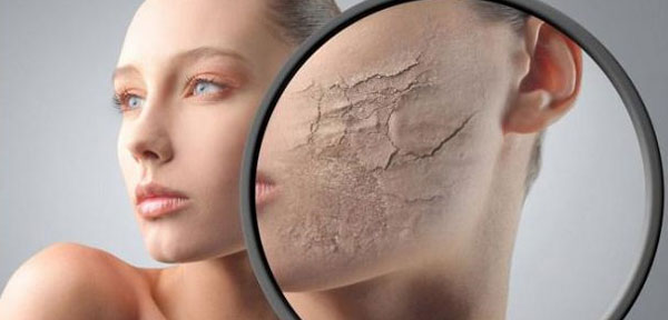 Dry Winter Skin Remedies